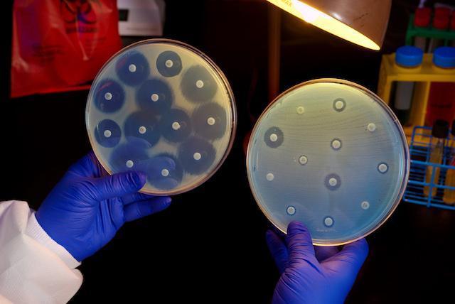 Drug-resistant+superbug+cause+for+concern+in+US