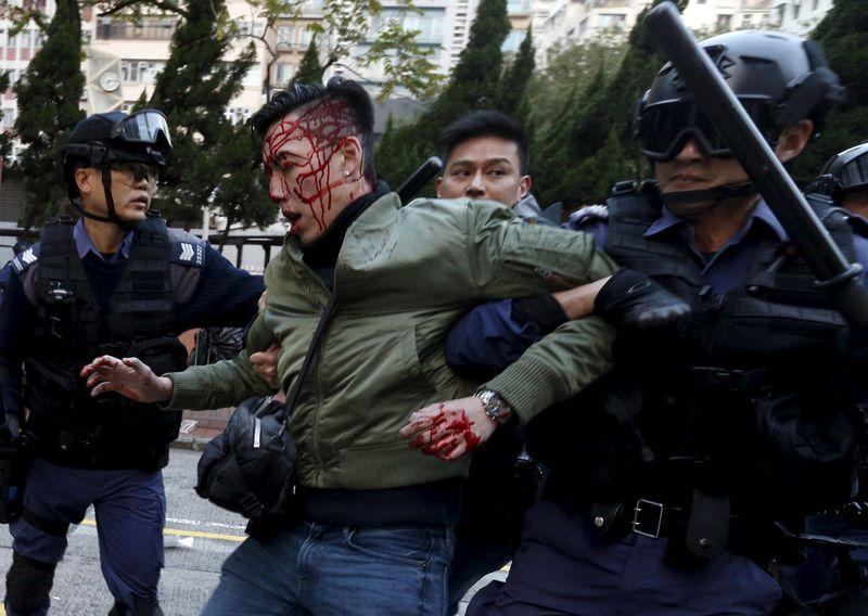 An unidentified injured man is escorted by riot police at Mongkok in Hong Kong, China February 9, 2016. REUTERS/Bobby Yip